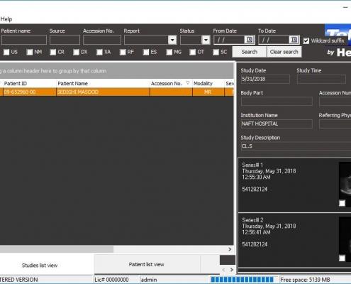 دانلود نرم افزار تله پکس TelePax به همراه کرک